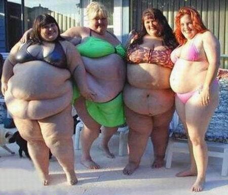 Obezitatea 1